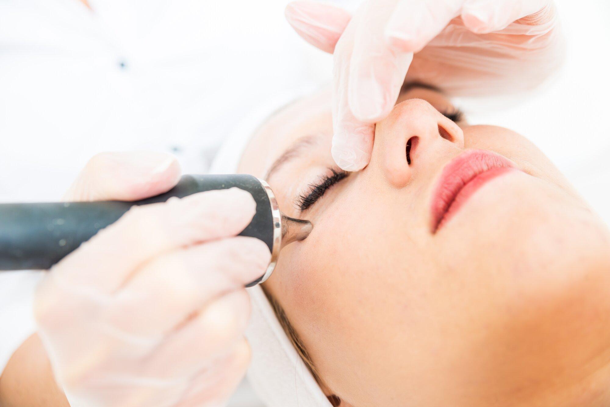 skin laser treatments